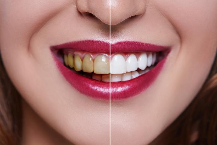 Stained:white teeth.jpg