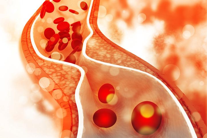 Cholesterol in artery.jpg