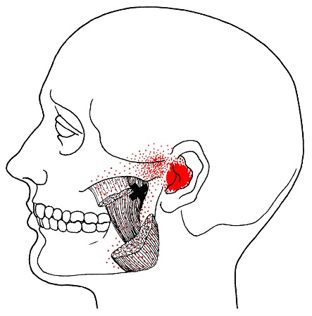 masseter-trigger-points3.jpg