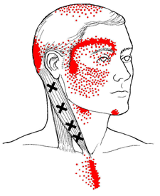 scm-trigger-points-1269542140.png