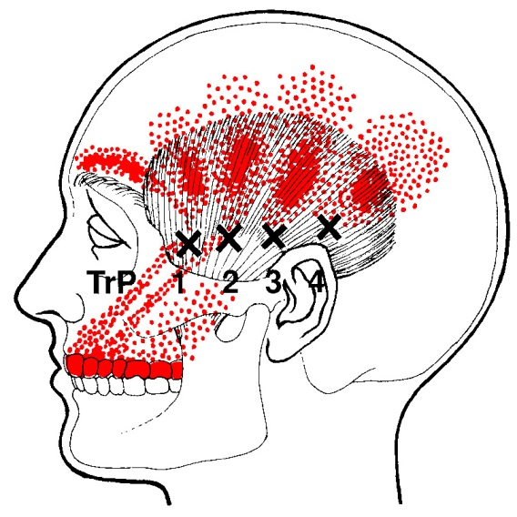 temporalis-trigger-points.jpg