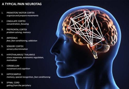 Kaavakuva kipumuistin verkostosta eri kipua käsittelevien aivo-osien välillä.