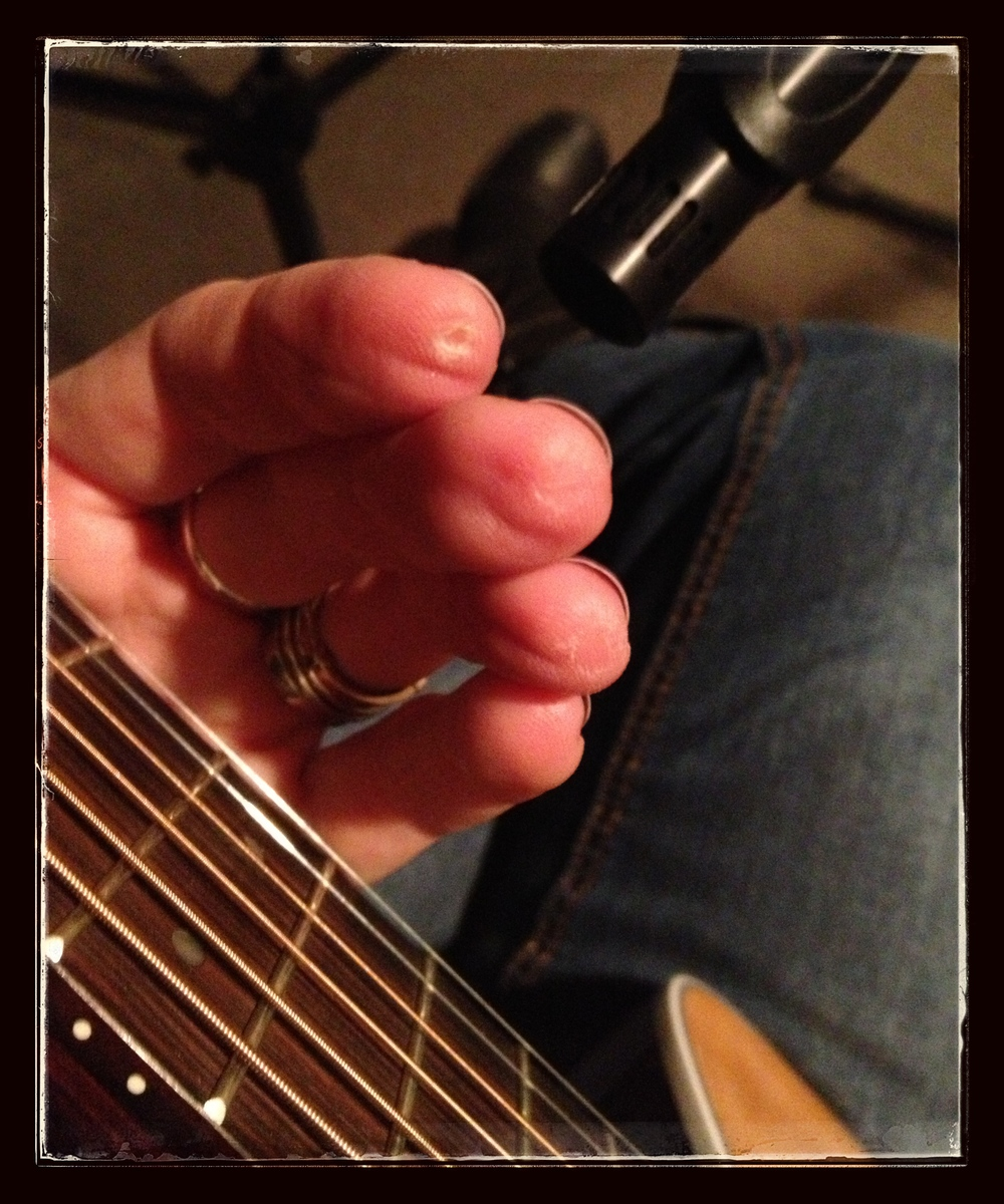 Swollen fingertips after a long day of guitar tracking...