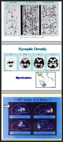 brainslides.jpg