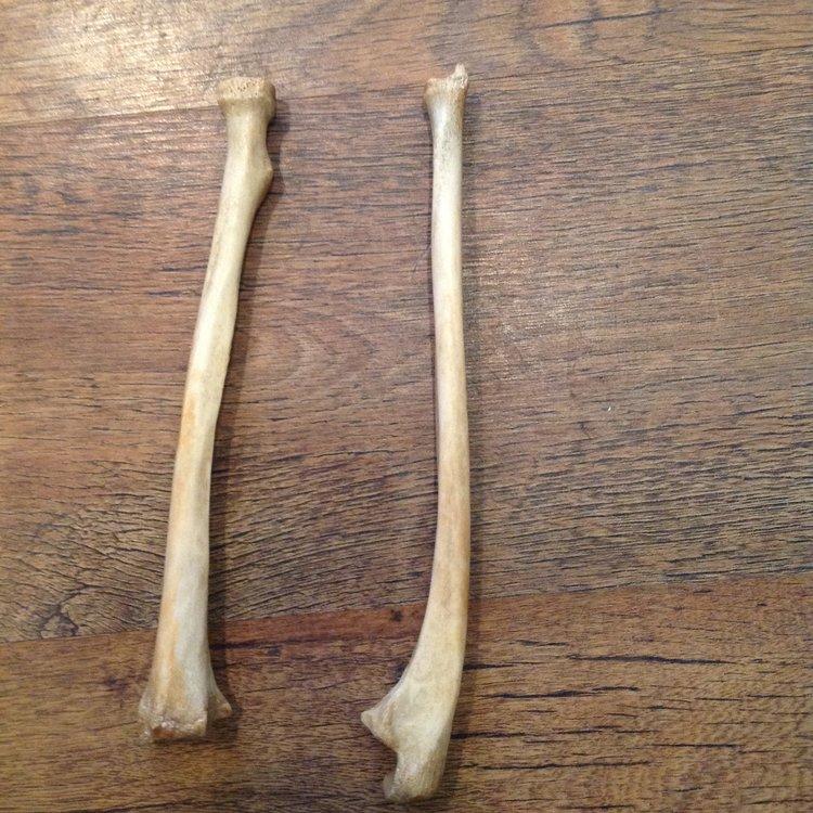 Victorian Era Radius And Ulna Arm Bones Antique Human Bone