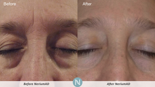 Nerium-Results-Man.jpg