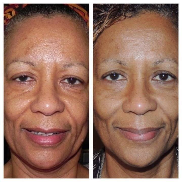 NeriumAD-Before-and-After-wrinkles-gone.jpg