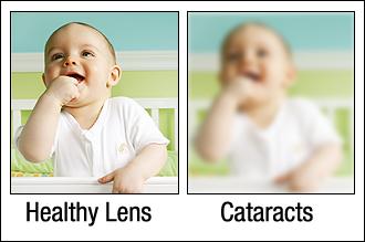 cataract_scene.png