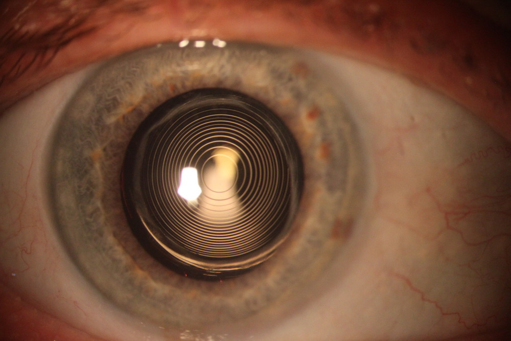 A multifocal intraocular lens inside the eye- designed to give good near,intermediate and distance vision
