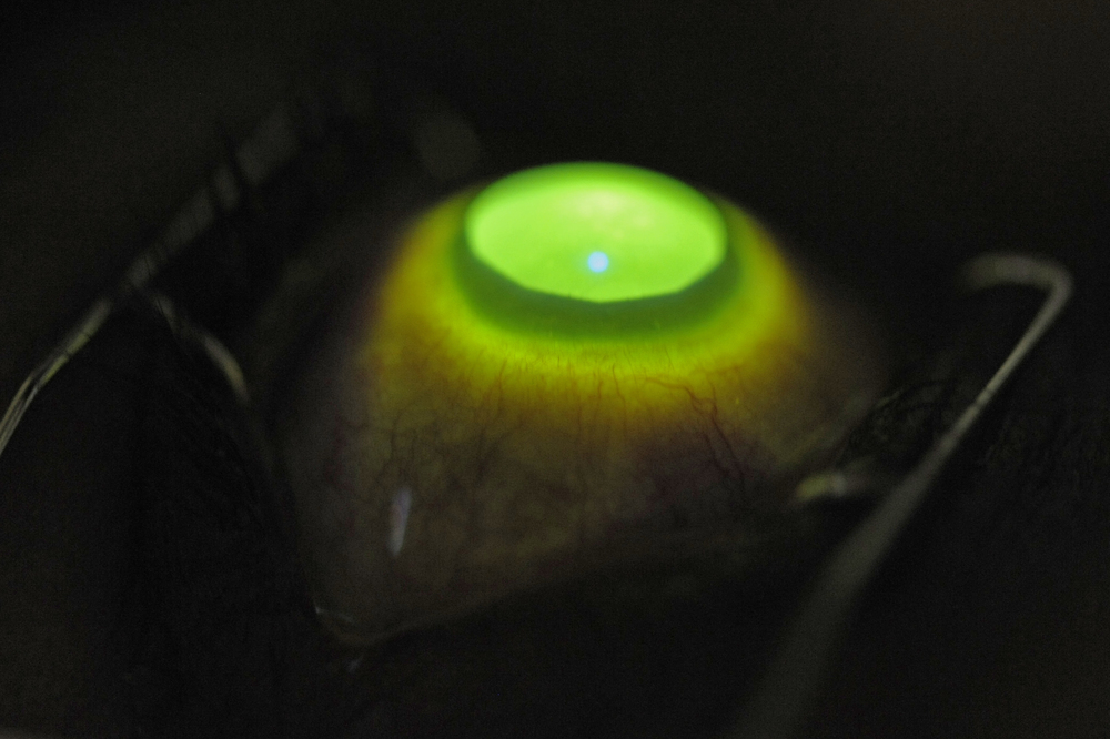 The Cornea is illuminated by UV light and appears green due to the Vitamin B Riboflavin drops