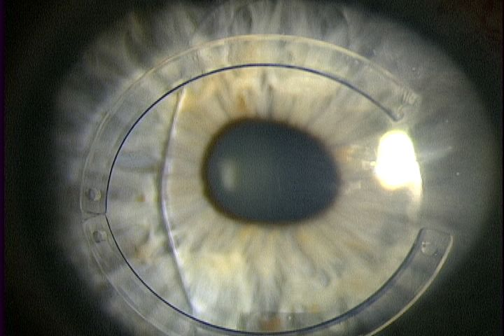 A combination of Intacs and a toric Artisan lens for Keratoconus