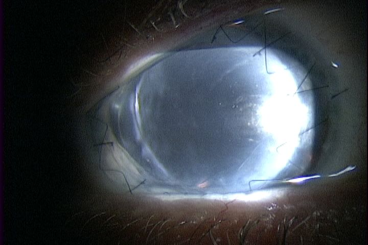 affected eye pre op.jpg