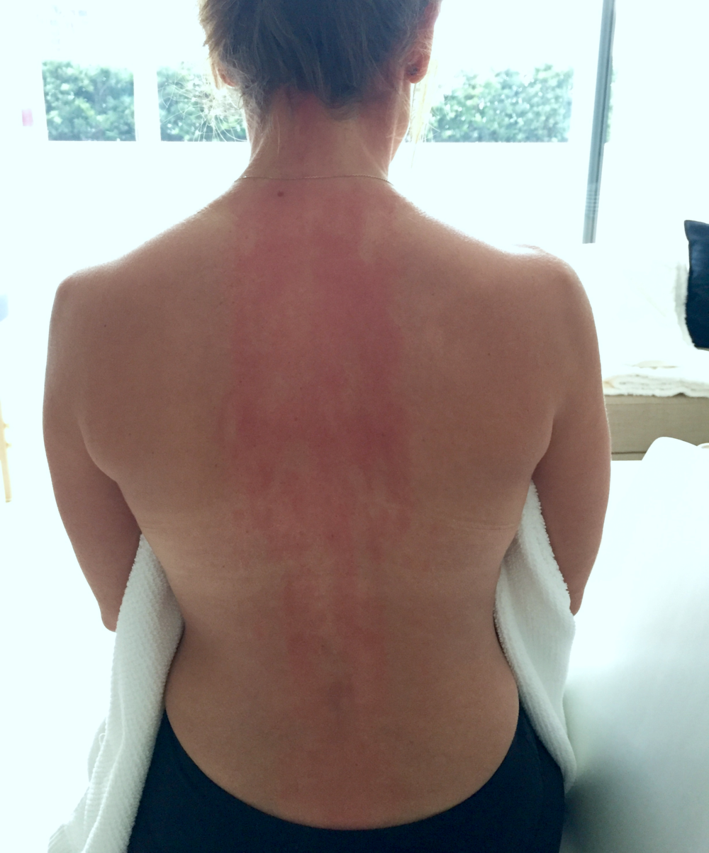 my back after my clavitherapy session. it's kind of like the new cupping.