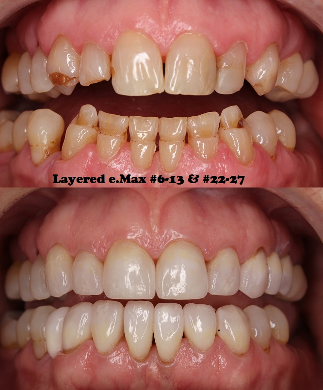 "e.Max #6-13 & #22-27  ""The patient came in because her daughter was getting married, and she wanted to change the appearance of her teeth. About a week after her daughter got married, her boyfriend proposed to her! Her entire outlook and personality have changed, and I wanted to thank you all for being a part of that. Thank you all for the amazing work you do! Dr. RJ Ochsner"