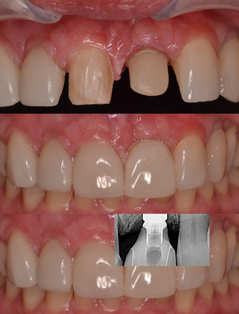 #8 E.Max Veneer,#9 Custom Shaded E.Max Abutment & Crown -