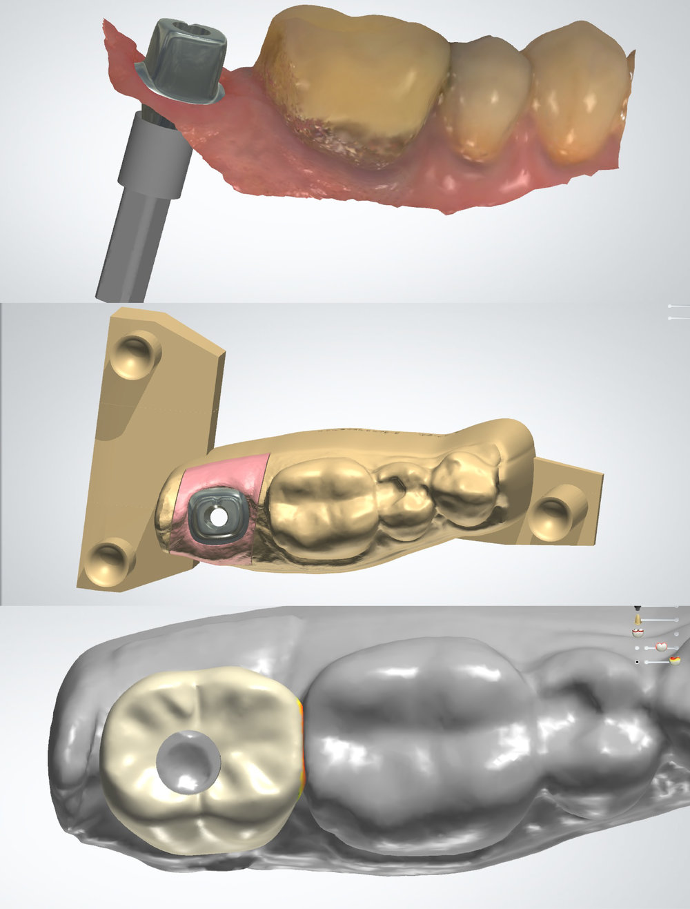 Intraoral Scan Workflow#31 Screw Retained Crown On Custom Designed Abutment -