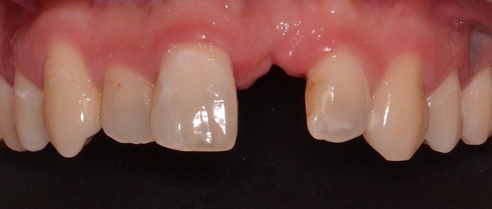 Where should this implant be placed and why? - CLICK HERE TO FIND OUT!