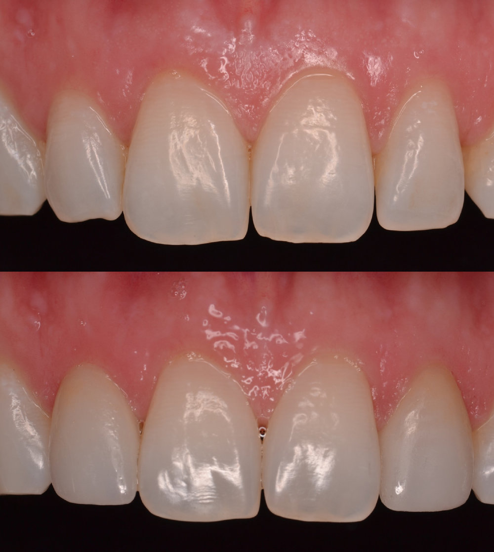 7 and 10 Veneers Before and After
