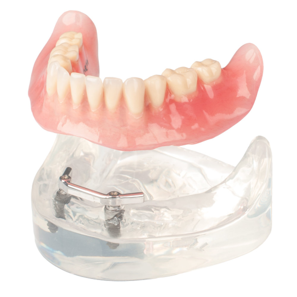 Removable Overdenture