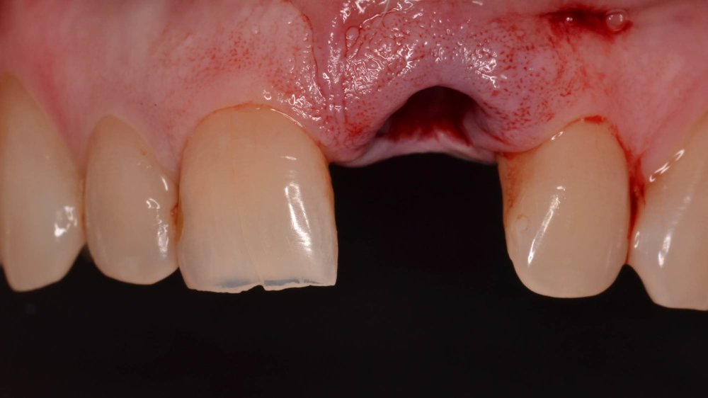 Figure 5b; atraumatic extraction tooth #9