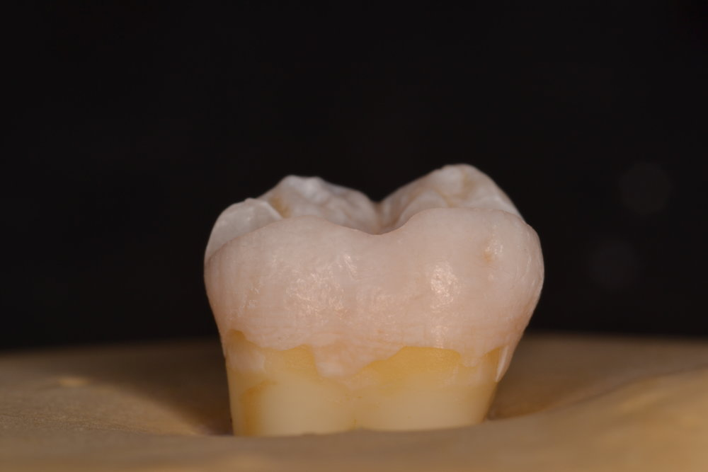 Figure 1b; 2 mm occlusal table reduction, buccal half of a mandibular second molar from a mesial view. The reduction follows the contour of the tooth into the buccal groove