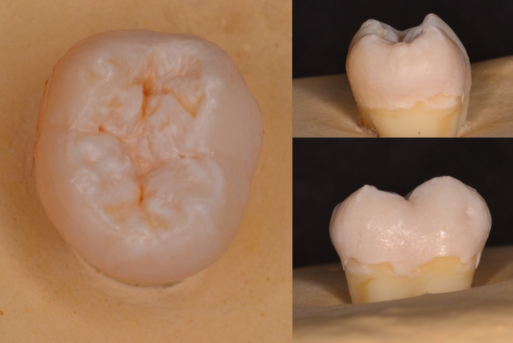 FIgure 0; pre-operative view of a mandibular second molar.