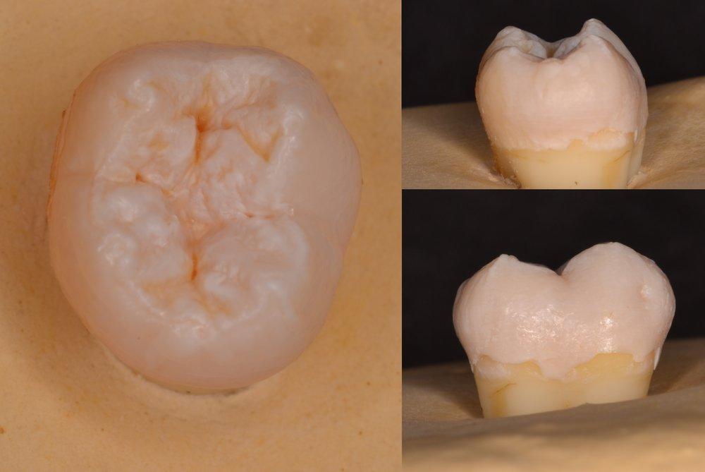FIgure 0; pre-operative view of a mandibular second molar.