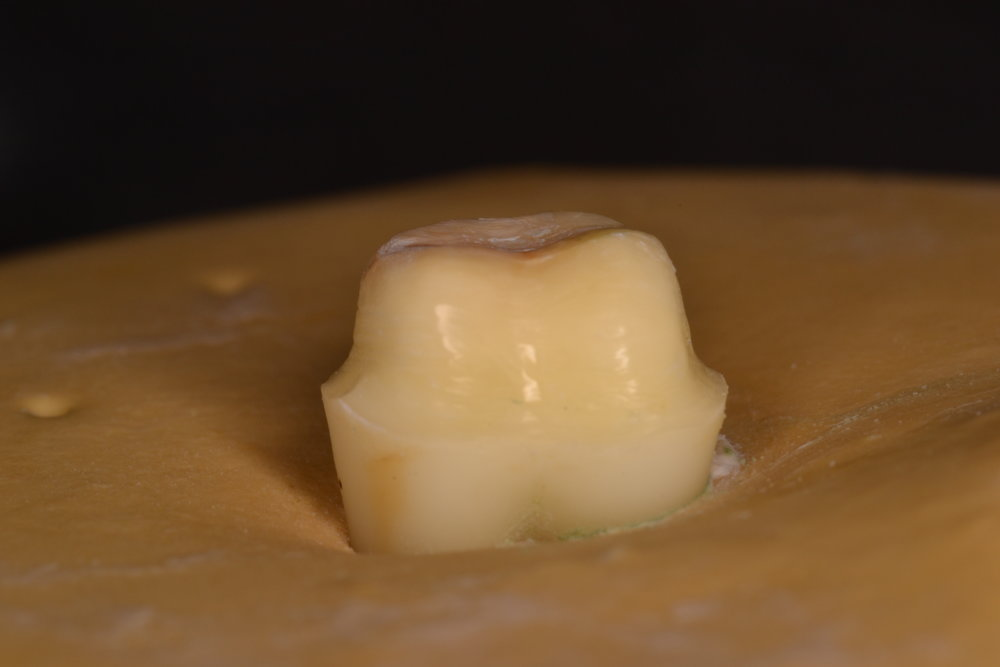 Figure 5; The completed tooth preparation.