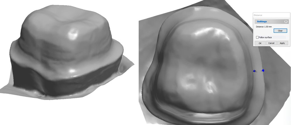 Figure 3c, A digitized version of the tooth preparation for eMax crown, with a smooth finish line that is 1 mm in width