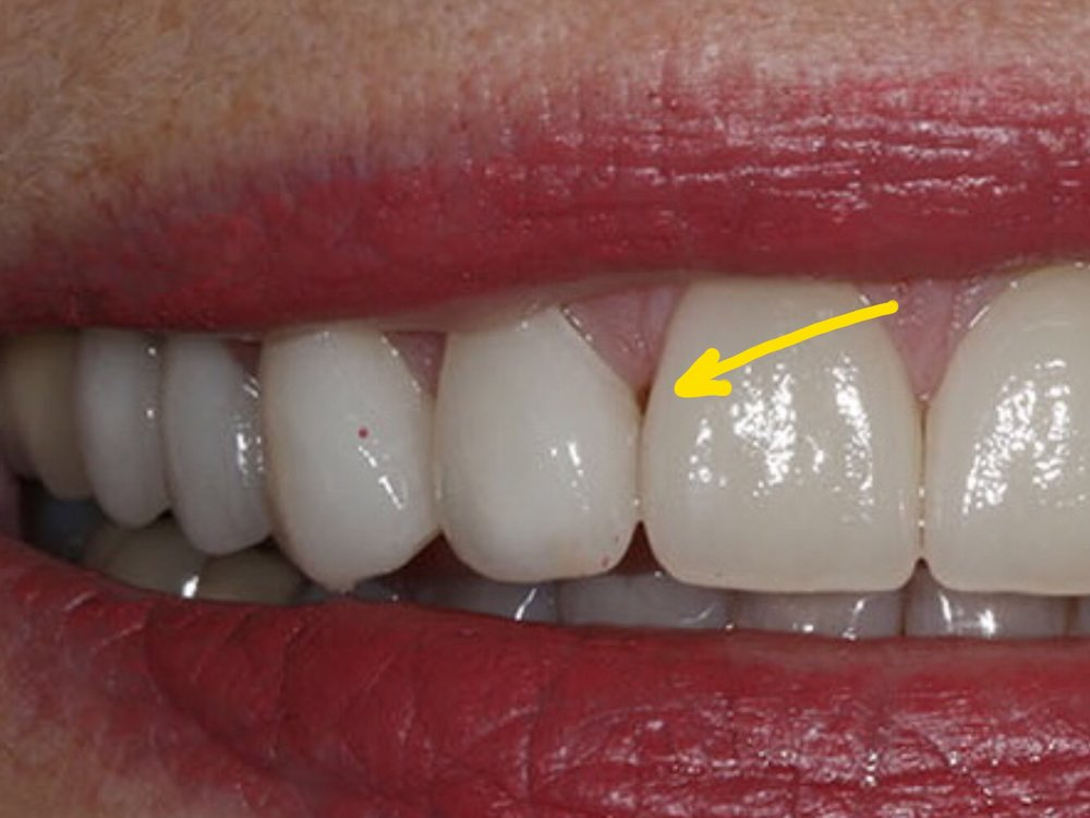 Figure 1; A black triangle upon delivery of veneers.