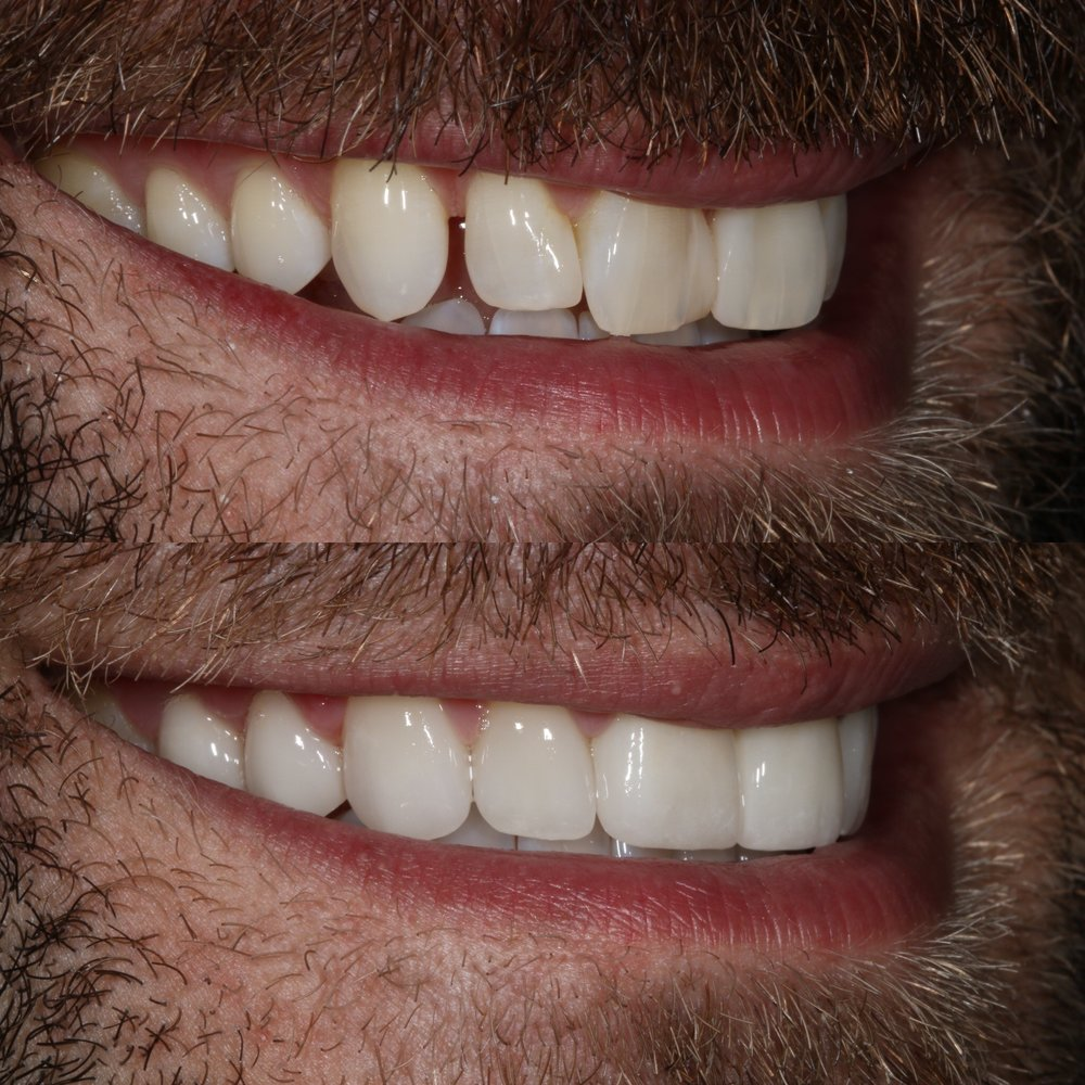 Figure 3; Before and after closing a diastema with porcelain.