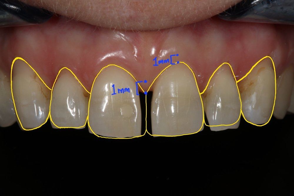 Figure 6; Distance from gingival margin to preparation margin