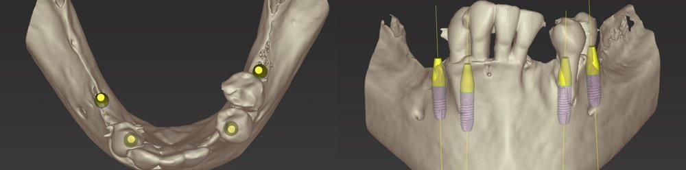 Figure 2; Digitally assisted planning of the implant position.