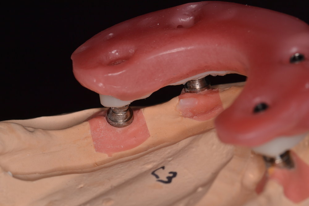 Figure 7; Definitive altered cast with verification jig and wax bite rim at the patient's current Vertical Dimension of Occlusion (VDO).