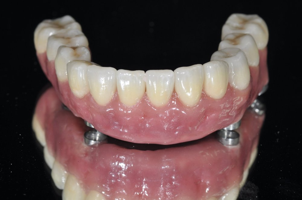 Figure 11; The fully processed definitive prosthesis (PEEK, eMax, Composite), ready for delivery.