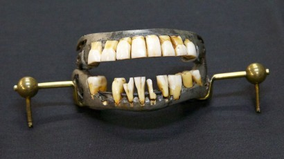 The teeth in question