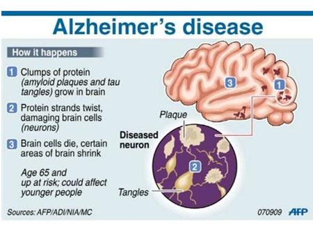Alzheimer's Disease Cause
