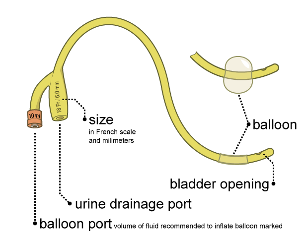 Opinion Catheter hole into pee slid