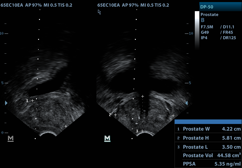 Transrectal ultrasound showing the volume of the prostate