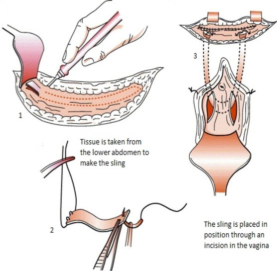 Rectus fascia sling procedure