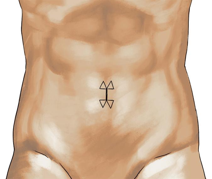 umbilicoplasty1_small1.jpg