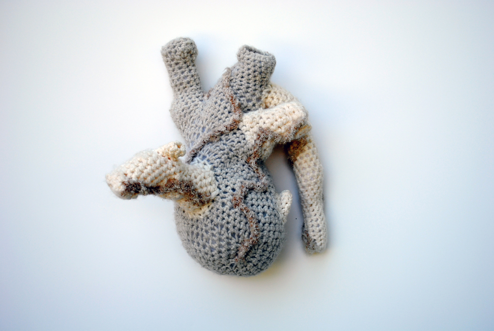 "Untitled , 2010. Yarn, fiberfill.  12""   x 6""   x 13""   (dimensions variable). Courtesy of the artist."