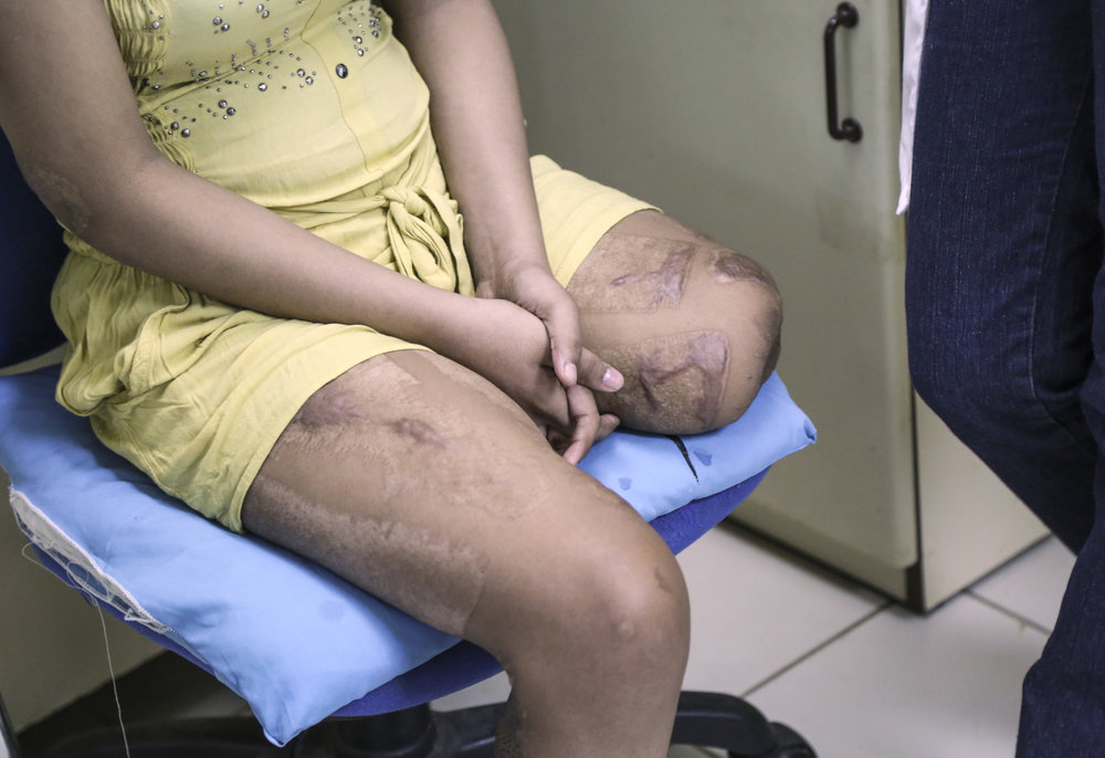 A young woman's scars after she was hit by a live electrical power line.