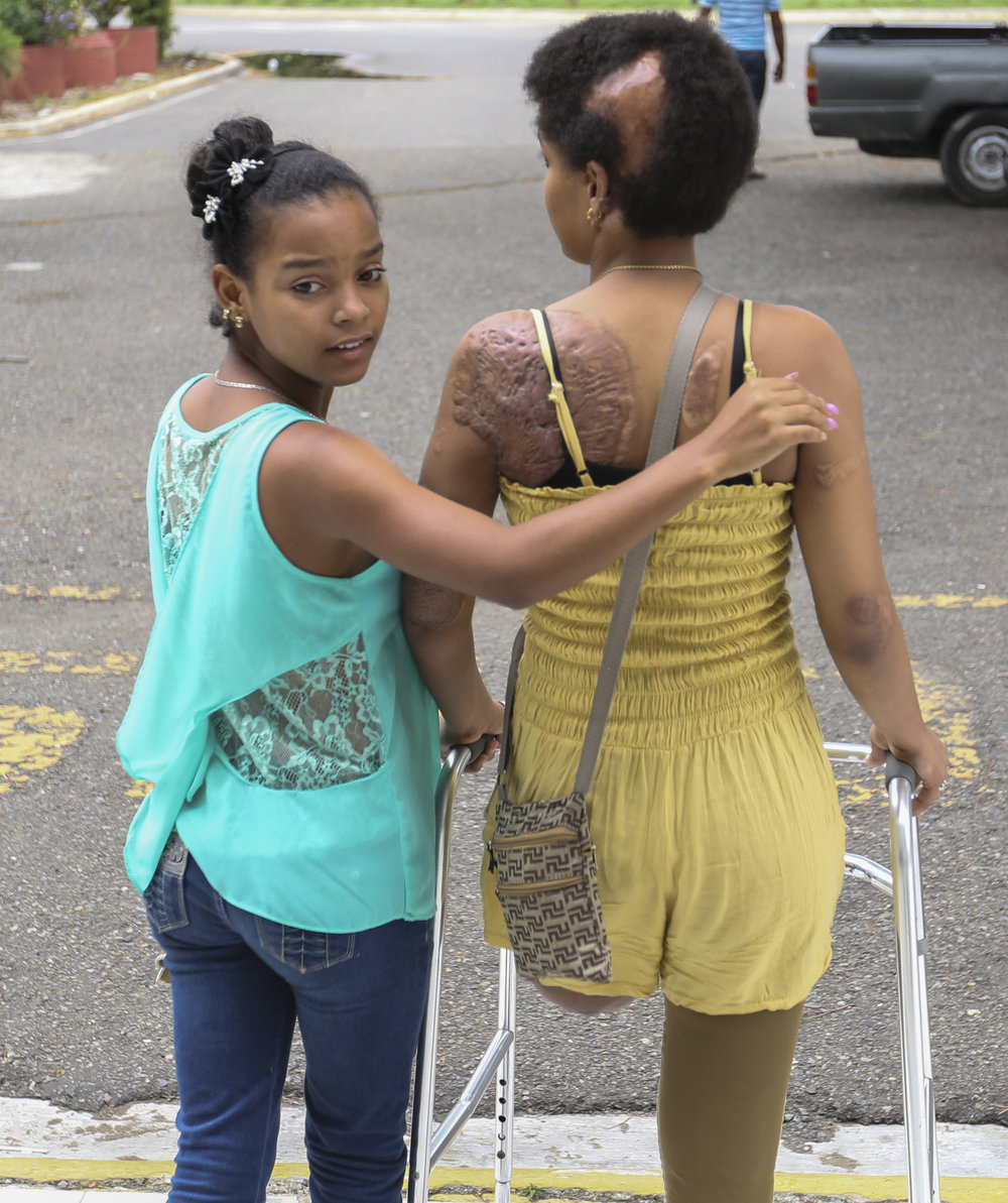 A burn patient and her sister leave a burn clinic in The Dominican Republic.