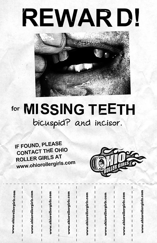missing_teeth.png