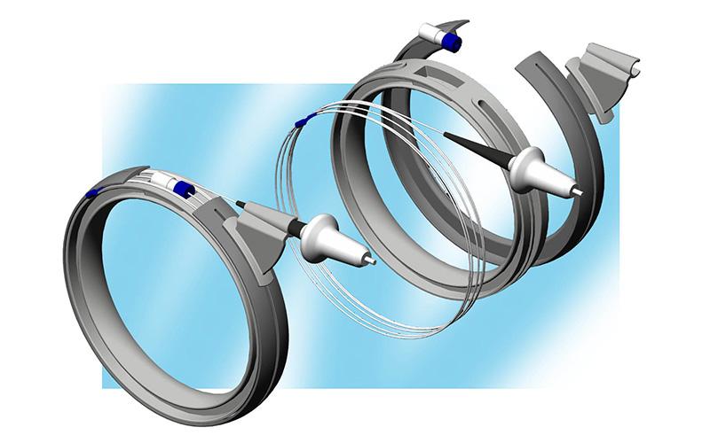EVLT-diomed-portfolio-image-1