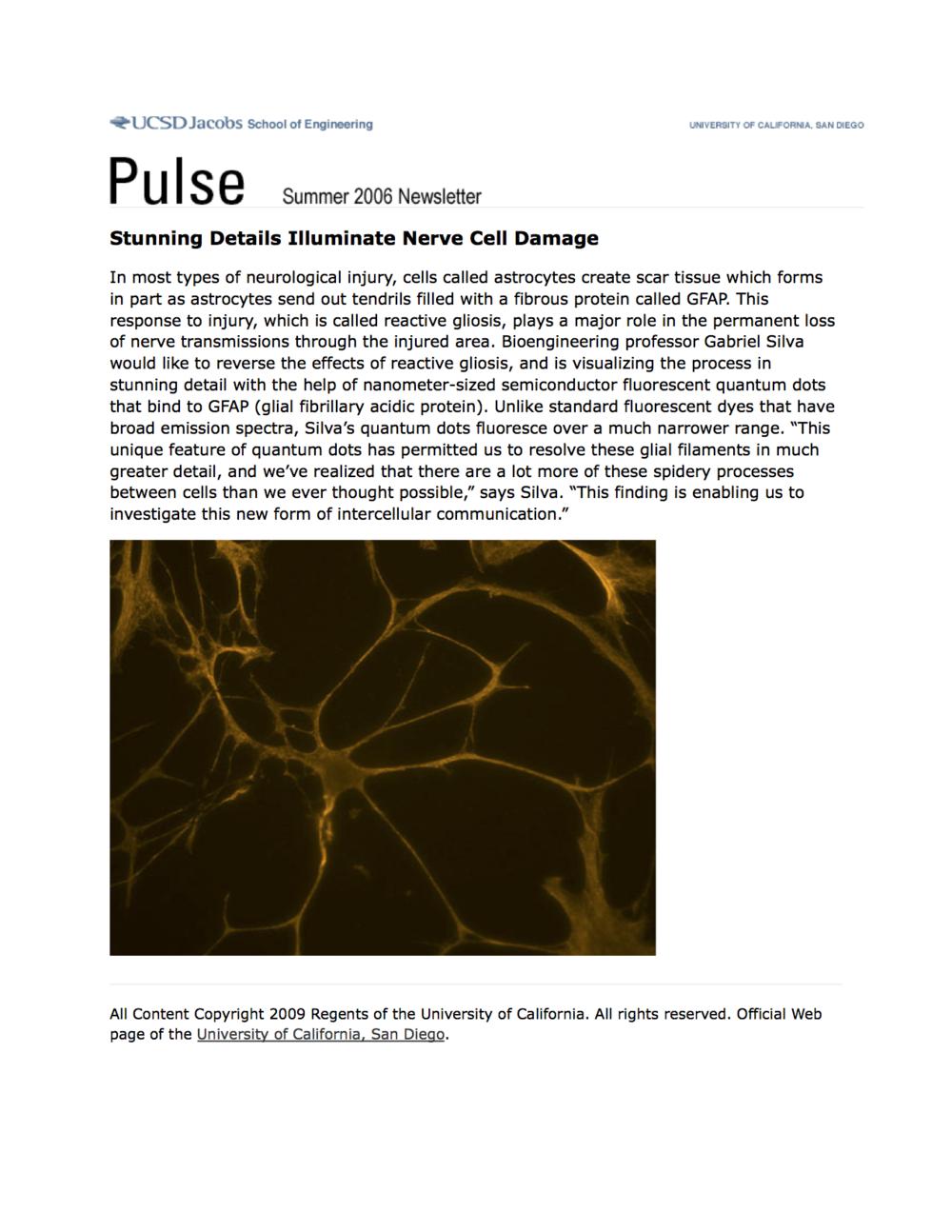 Neuroscientists Illuminate Role Of >> Stunning Details Illuminate Nerve Cell Damage Mathematical