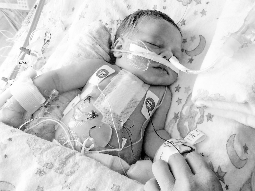 baby after open chest surgery-2.jpg