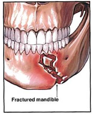 fractured_mandible.jpg