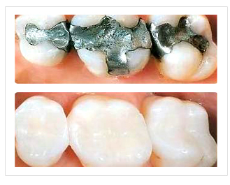Amalgam (silver colored) fillings (TOP) replaced with Composite Fillings (tooth colored) resulting in a pleasing cosmetic appearance (Bottom)